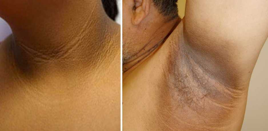 Acanthosis Nigricans Treatment