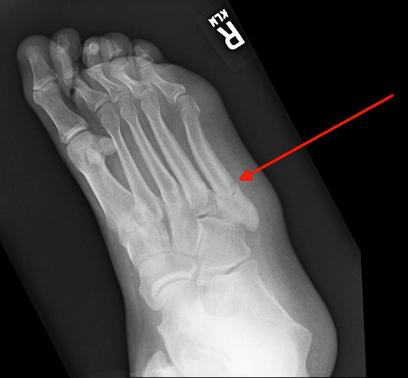 Jones fracture 1