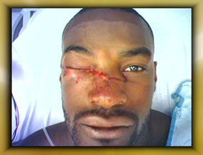 tyson car accident