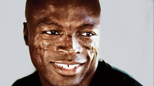 Seal samuels facial scars