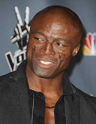 Seal: A Lesson In Lupus | BlackDoctor
