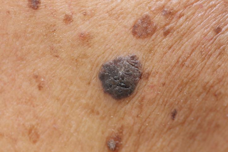 mole on skin