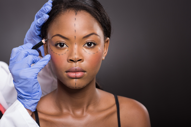Young African American woman with plastic surgery correction marks