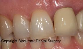 Case 16 before - unsightly old crown and dark teeth
