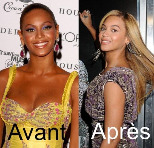 Beyonce s'éclaircit la peau ?