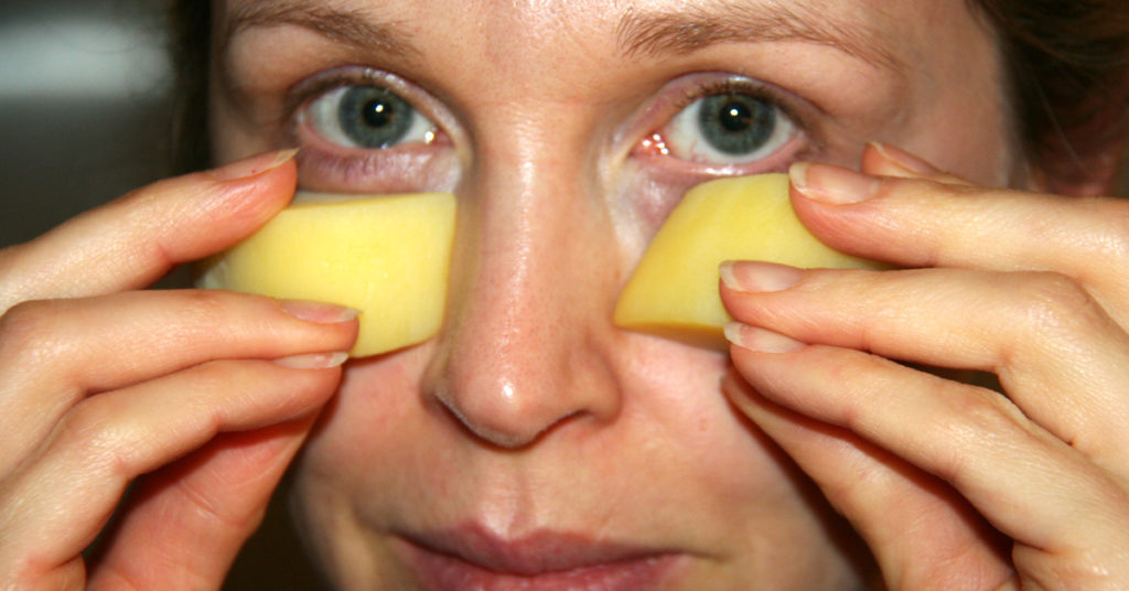 Potatoes from edema under the eyes