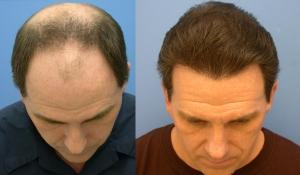 hair transplantation block hair loss