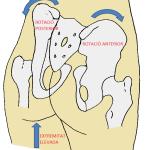 Torsió pèlvica secundària a una discrepància de longitud d'extremitats inferiors