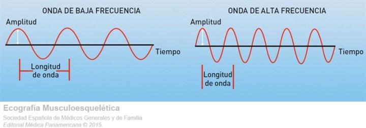 Propietats fonamentals de les ones. Exemples d'ones de baixa i alta freqüència. Il.lustració de P. Barceló. Ecografia Musculoesquelética. Atlas ilustrado. SEMG
