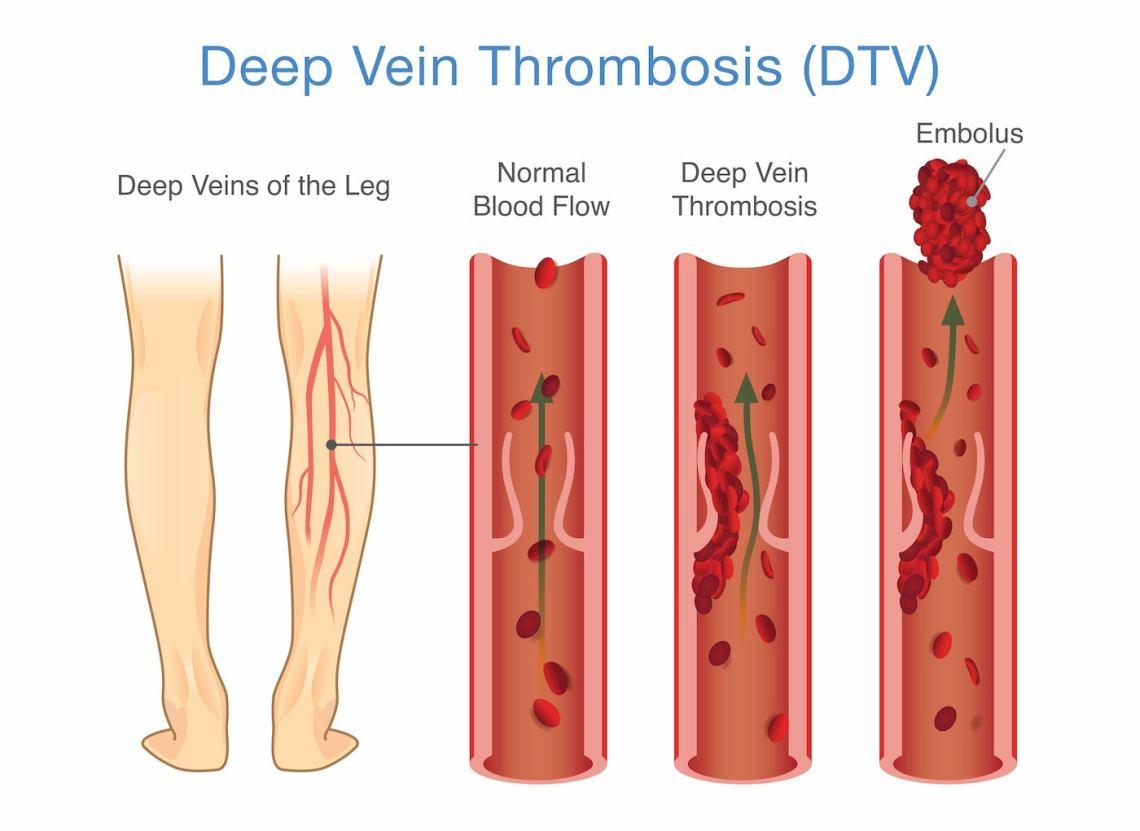 Visual diagram of thrombosis.