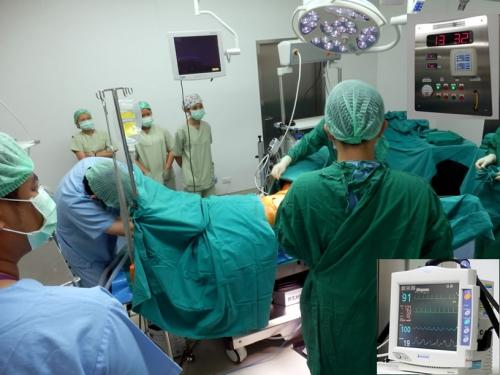 ガモン病院の腹腔鏡によるS字結腸法