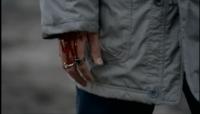 血の流れる腕