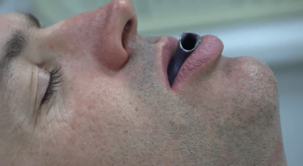 mouth-piece-3d-printed-3