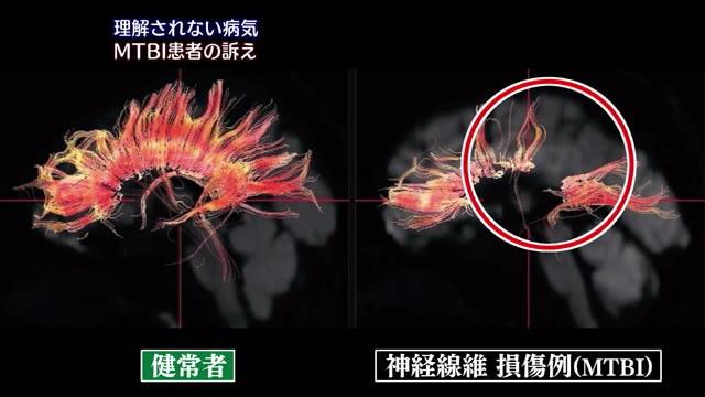 きっかけは交通事故「外見からはわからない」病気 MTBIとは | 広島ニュースTSS