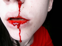 20100330_nosebleed_by_chickiprick