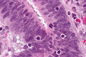 Micrograph showing tumor-infiltrating lymphocytes in a case of colorectal cancer with evidence of MSI-H on immunostaining.