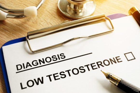 Symptoms of low testosterone.  Diagnosis of low testosterone.