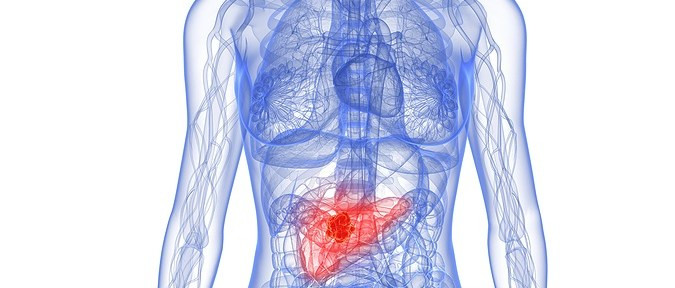 Diabetes After Age 50 Signals Risk of Pancreatic Cancer, New Study