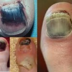 Various examples of Black Toes