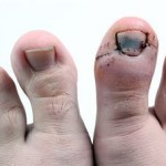 Swollen toe with a Hematoma