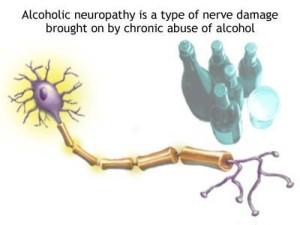 Alcoholic Neuropathy defined