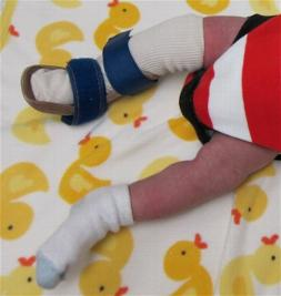 Brace for a child with a clubfoot