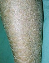 Lower leg with Ichthyosis