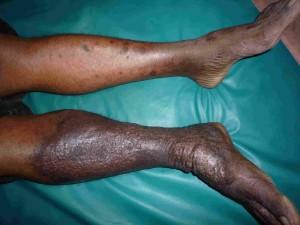 Acute Lipodermatosclerosis