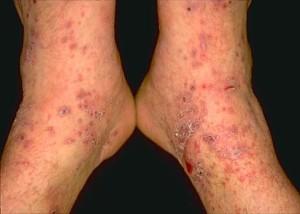 Dermatomyositis in an adult