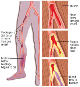 Effects of Peripheral Vascular Disease