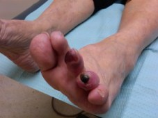 Ulcer with Gangrene on the 4th toe