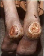 Ulcers on the heels