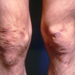 Knees affected by Ehlers-Danlos-Syndrome