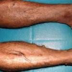 Vascular Ehlers-Danlos Syndrome