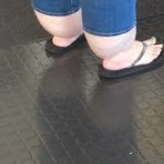 Woman with Cankles