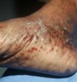 Eczema on the feet