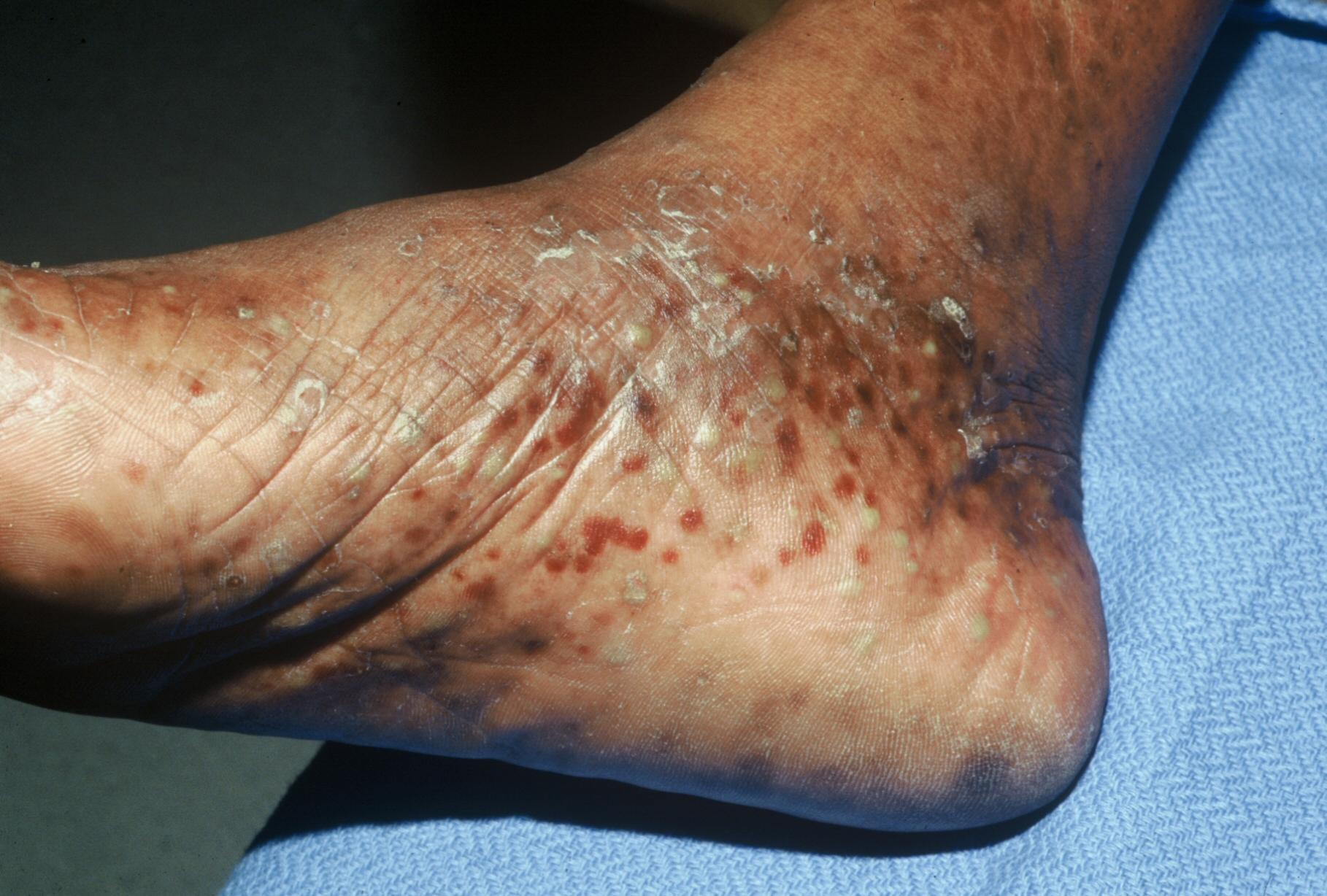 Got Peeling Feet? - Almawi Limited The Holistic Clinic