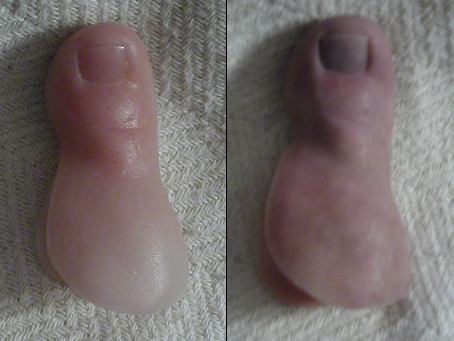 Finally A Cosmetic Approach To Re The Healthy Appearance Of Damaged Toenail That Has Bee Thick Flakey Or Discolored
