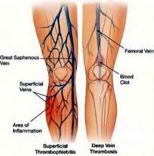 Superficial  Thrombophlebitis vs Deep Vein Thrombosis