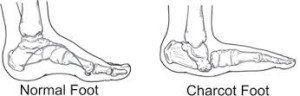 A Normal vs Charcot Foot