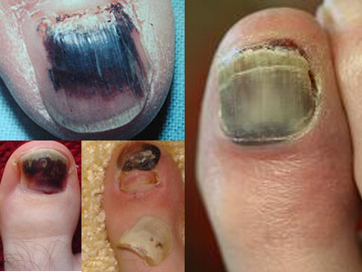 Nail Cancer ...Warning signs to look out for - Almawi Limited The ...