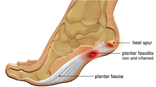 Posterior Tibial Tendonitis vs.Plantar Fasciitis - Almawi Limited ...