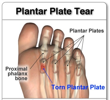 Plantar plate tear a ball of the foot condition almawi limited plantar plate tear a ball of the foot condition publicscrutiny Image collections