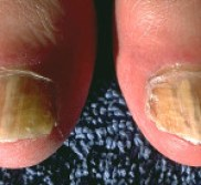Nails with fungus