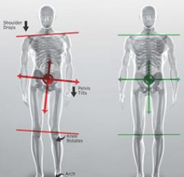 Balance vs Imbalance using Orthotics