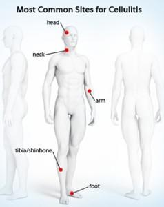 Cellulitis- Common sites