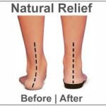 Effect of Orthotic Insoles