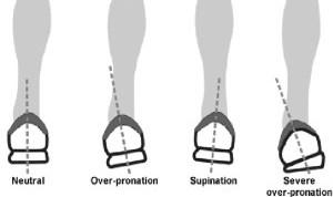 Pronation and Shoe Heel Wear