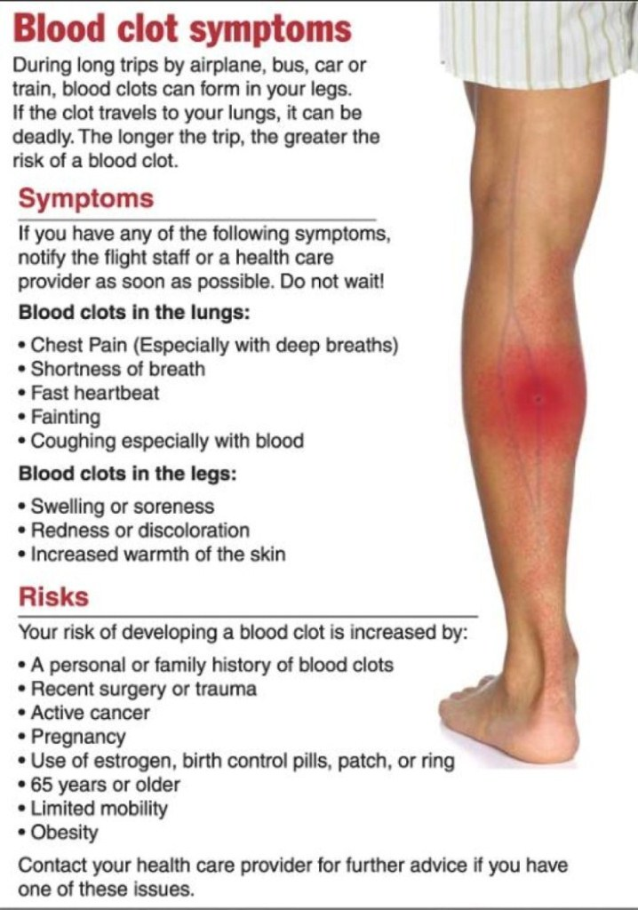 The Dangers of Deep Vein Thrombosis - Almawi Limited The ... Venous Thrombosis Treatment