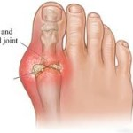 Swollen and inflamed joint
